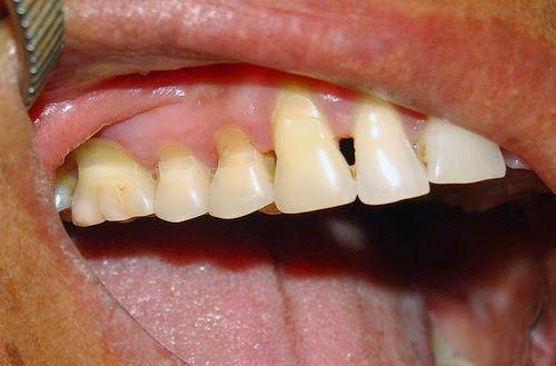 Triệu Chứng Và Điều Trị Mòn Răng -3