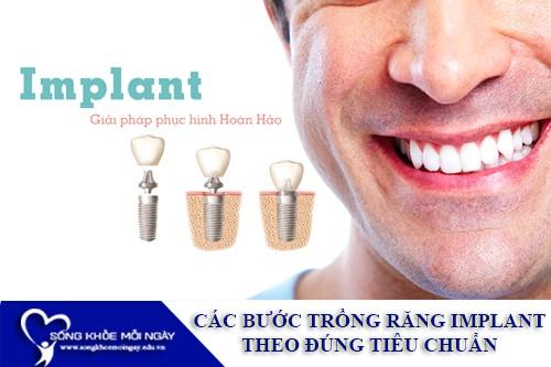 Các bước trồng răng Implant theo đúng tiêu chuẩn