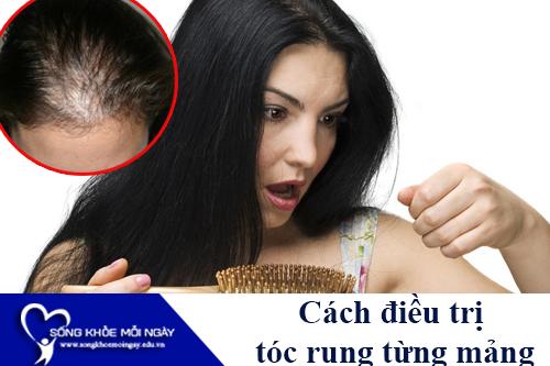 Cách điều trị bệnh tóc rụng từng mảng hiệu quả tốt nhất