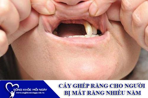 Cấy Ghép Implant cho người bị mất răng nhiều năm