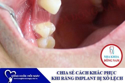 Chia sẻ cách khắc phục khi răng Implant bị xô lệch - Sống Khỏe Mỗi Ngày