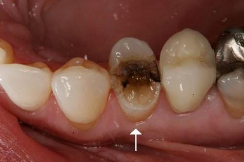 HỎI ĐÁP - Chữa Viêm Tủy Răng Có Đau Không