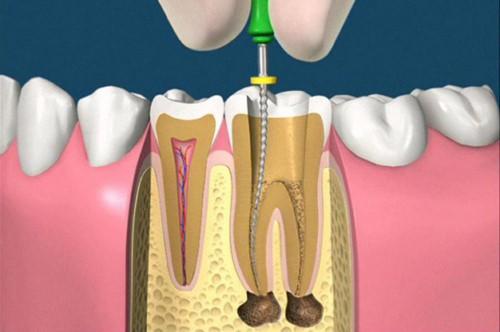 Chữa viêm tủy răng hết bao nhiêu tiền hiện nay