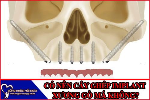 Có nên cấy ghép implant xương gò má không?