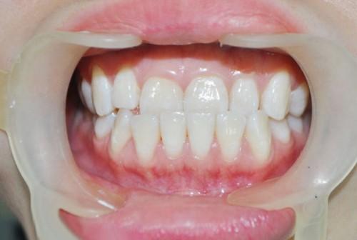 HỎI ĐÁP Răng hàm dưới móm nhẹ có nên niềng không?