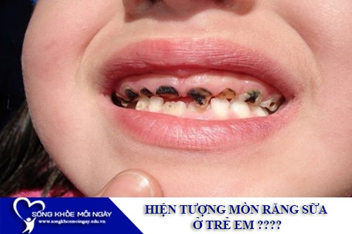 Hiện tượng mòn răng sữa ở trẻ em?