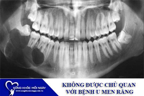 Không Được Chủ Quan Với Bệnh U Men Răng