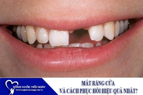 Mất răng cửa và cách phục hồi hiệu quả nhất?