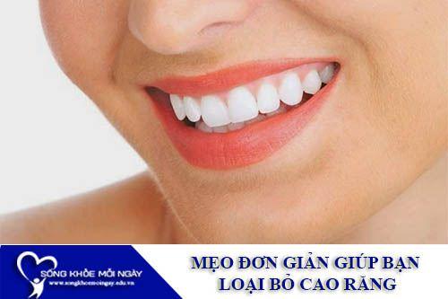 Mẹo Đơn Giản Giúp Bạn Loại Bỏ Cao Răng