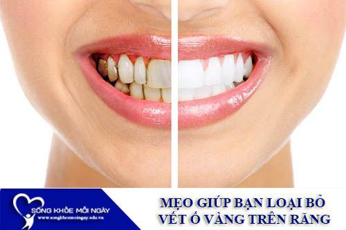 Mẹo Giúp Bạn Loại Bỏ Vết Ố Vàng Trên Răng