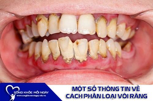 Một Số Thông Tin Về Cách Phân Loại Vôi Răng
