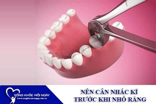 Nên Cân Nhắc Kĩ Trước Khi Nhổ Răng