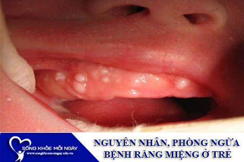 Nguyên Nhân Và Phòng Ngừa Bệnh Răng Miệng Ở Trẻ