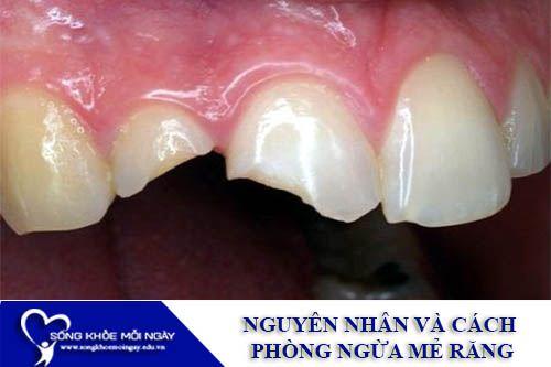 Nguyên Nhân Và Cách Phòng Ngừa Mẻ Răng
