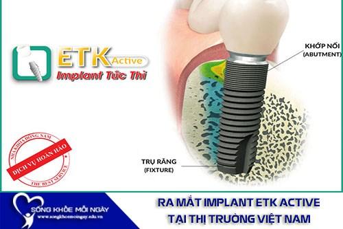 Chương Trình Ưu Đãi 20% Cấy Ghép Implant ETK Active