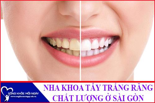 Nha Khoa Tẩy Trắng Răng uy tính tốt nhất ở TPHCM