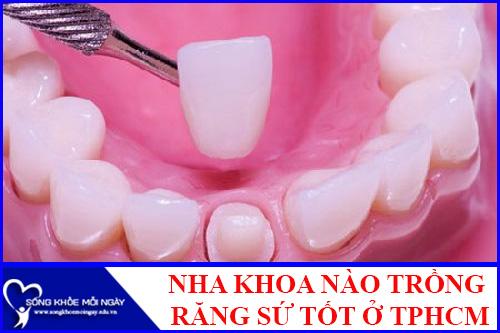 Nha khoa nào trồng răng sứ tốt nhất TPHCM