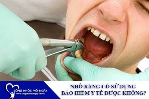 Nhổ răng có sử dụng bảo hiểm y tế được không?