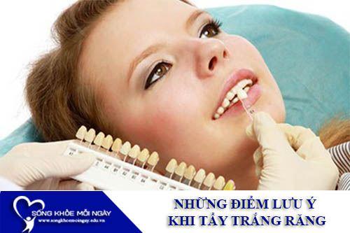 Những Điểm Lưu Ý Khi Tẩy Trắng Răng