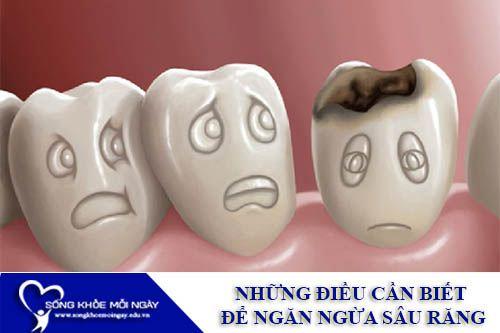Những Điều Cần Biết Để Ngăn Ngừa Sâu Răng