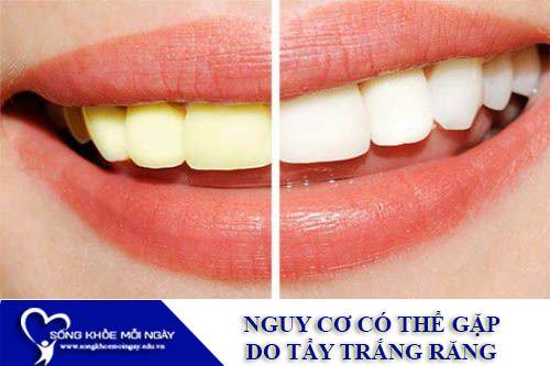 Những Nguy Cơ Có Thể Gặp Do Tẩy Trắng Răng
