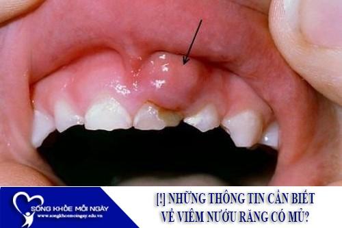 [!] Những Thông Tin Cần Biết Về Viêm Nướu Răng Có Mủ?