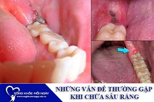 Những Vấn Đề Thường Gặp Khi Chữa Sâu Răng