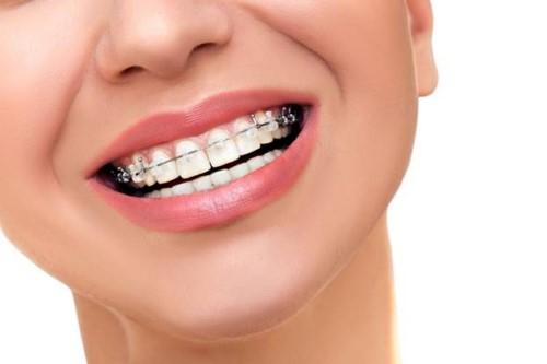 [HỎI ĐÁP] Niềng răng làm răng yếu đi không?