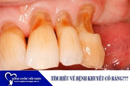 Tìm Hiểu Về Bệnh Khuyết Cổ Răng?