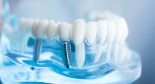 Top 5 Nha Khoa Trồng Răng Implant Tốt Nhất Năm 2018