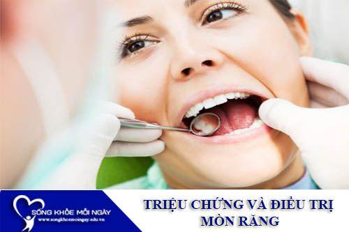 Triệu Chứng Và Điều Trị Mòn Răng