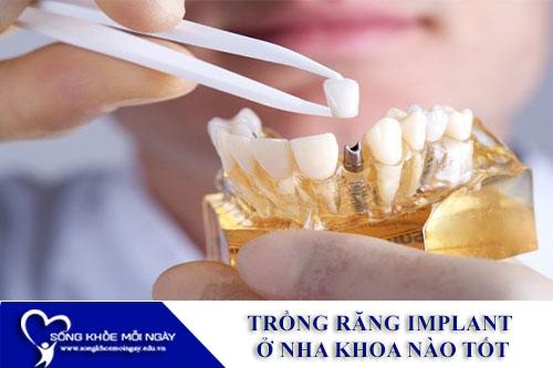 Trồng Răng Implant Ở Nha Khoa Nào Tốt