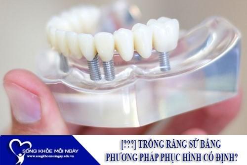[???] Trồng răng sứ bằng phương pháp phục hình cố định?